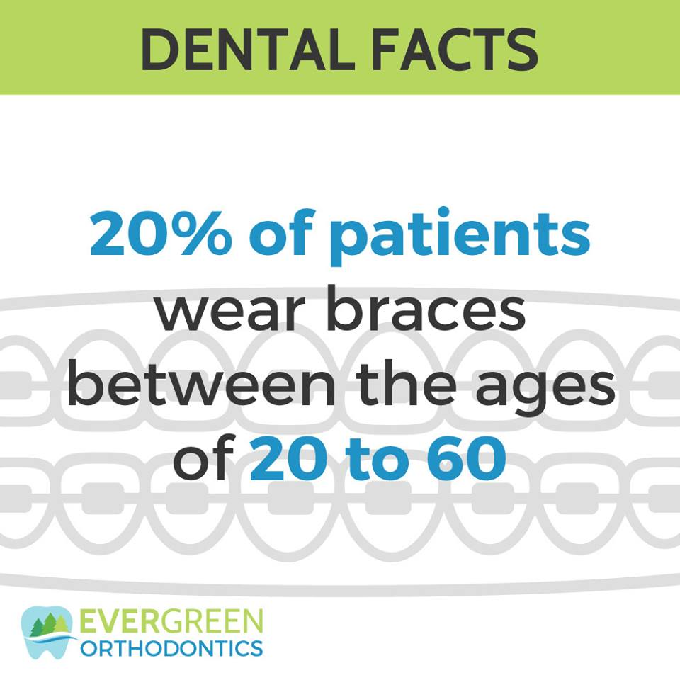 #‎Braces‬ aren't just for kids and teenagers anymore. More and more adults are taking the plunge!