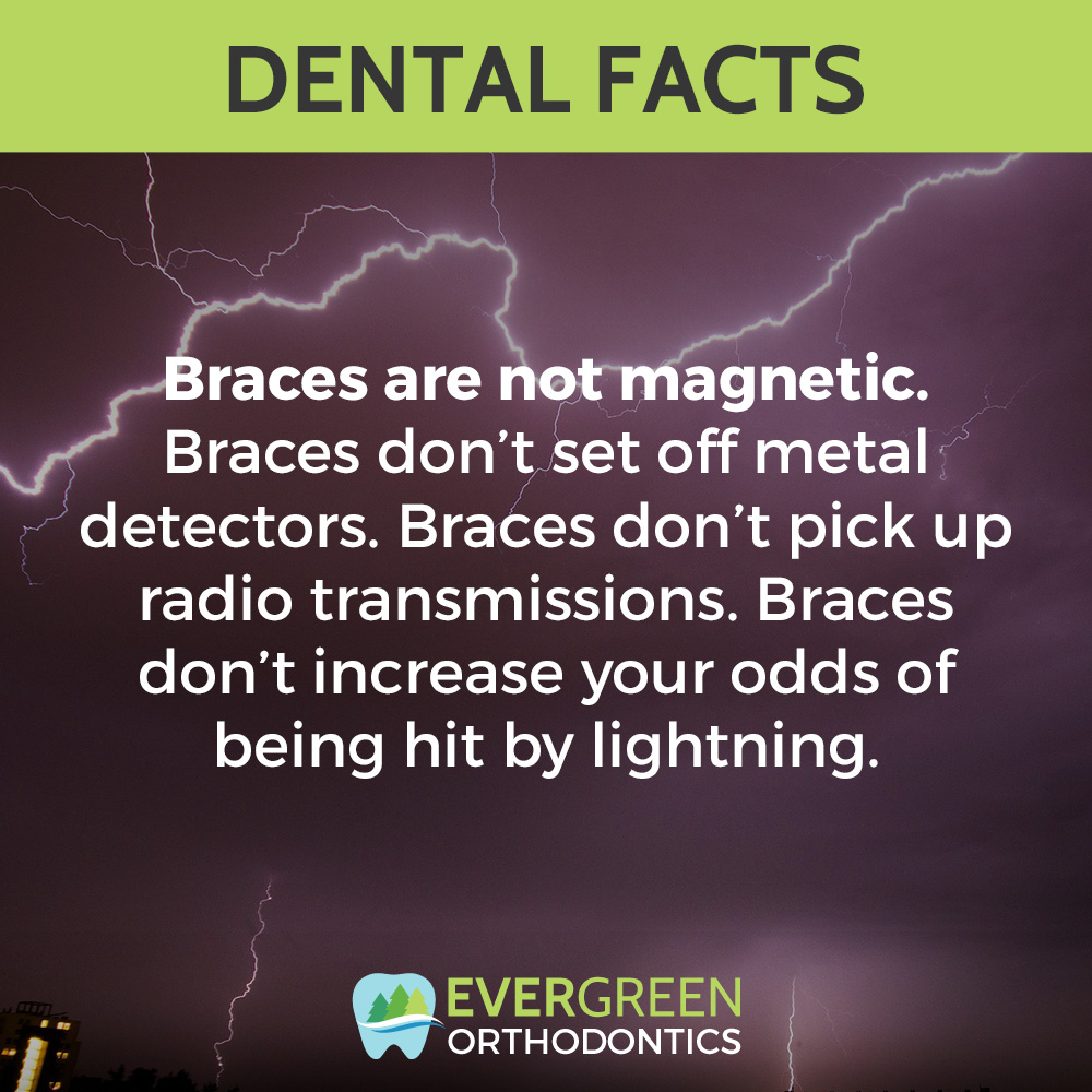 magnetic-braces