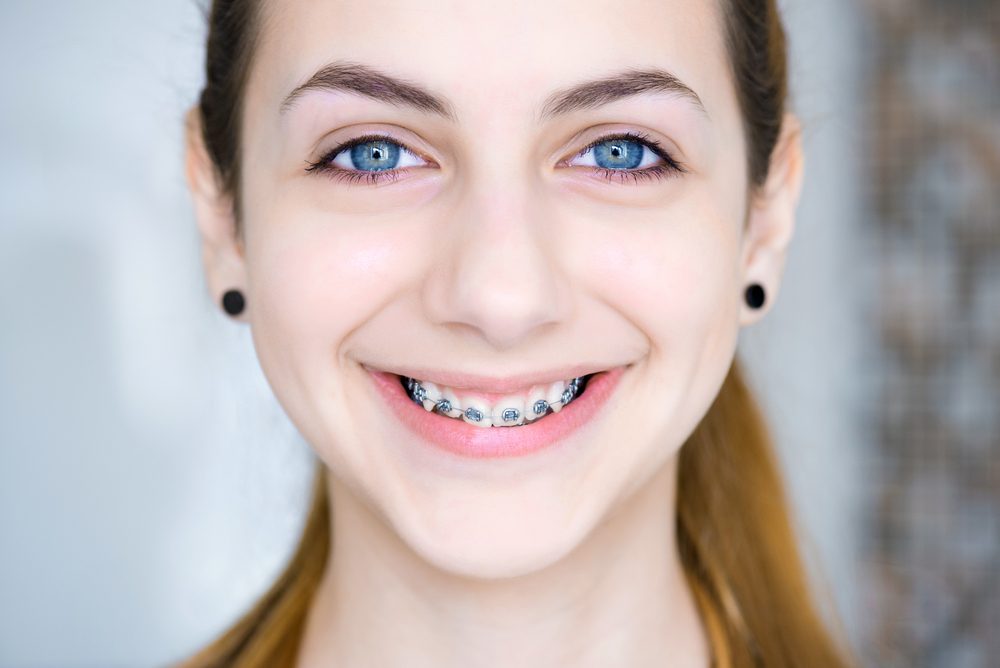 Teen with braces evergreen orthodontics coquitlam